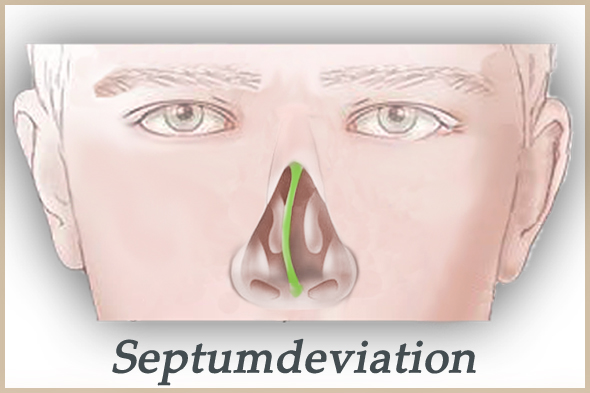 septumdeviation