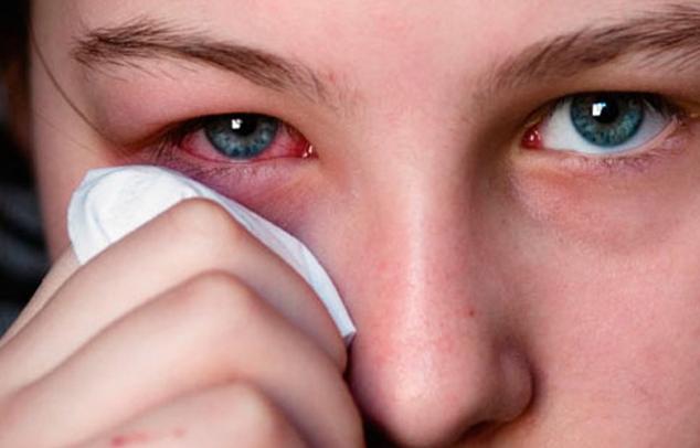 Geschwollene Augen und Augenjucken