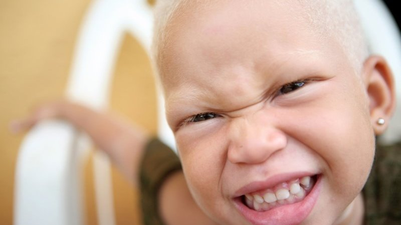 Addressing Myths About Albinism – World Albinism Day