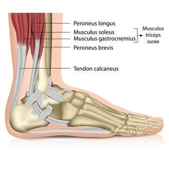 Achillodynie Ursachen Entzundung Der Achillessehne Und Achillessehnenruptur Www Gelenk Doktor De