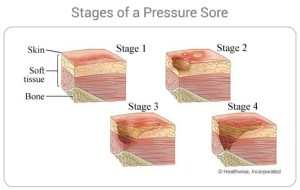 Stages of a Pressure Sore