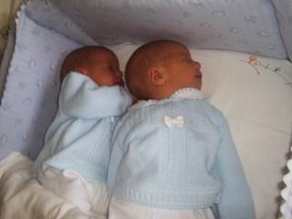 ictericia patológica con gemelos y lactancia materna