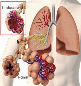 Generations Magazine - Emphysema - Image 01