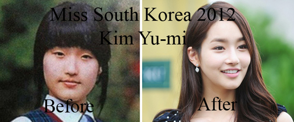 Do All South Korean Girls Get Plastic Surgery Well I Did At