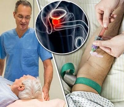 Risultati immagini per prostate cancer test