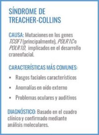Treacher-Collins