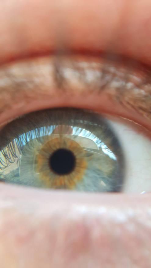 Rear Camera - My Eye