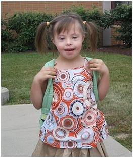 Father of Down Syndrome Child: