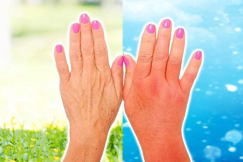 Kälteallergie Kälteurtikaria Wenn Die Haut Bei Kälte