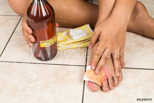 Apple cider vinegar effective natural remedy for skin itch, fungal infection, warts, bruises and burns.