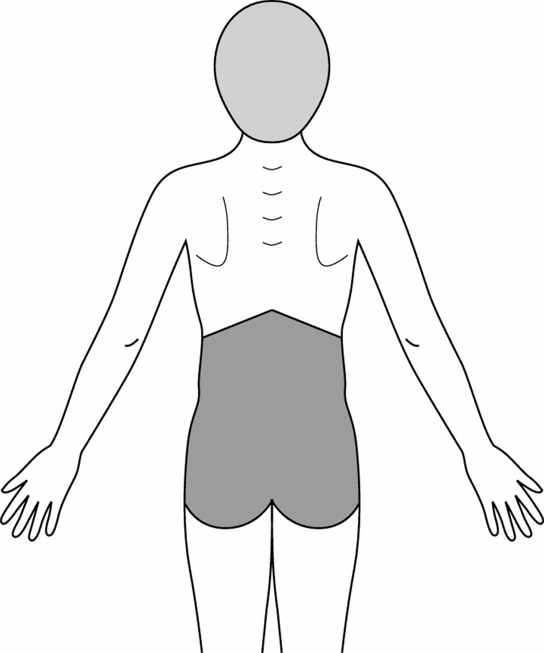 Back Pain Drawing At Getdrawings