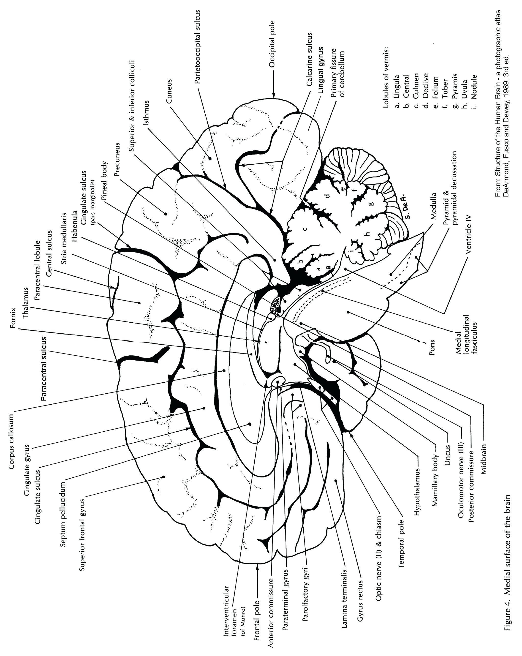 Brain And Its Parts Drawing At Getdrawings