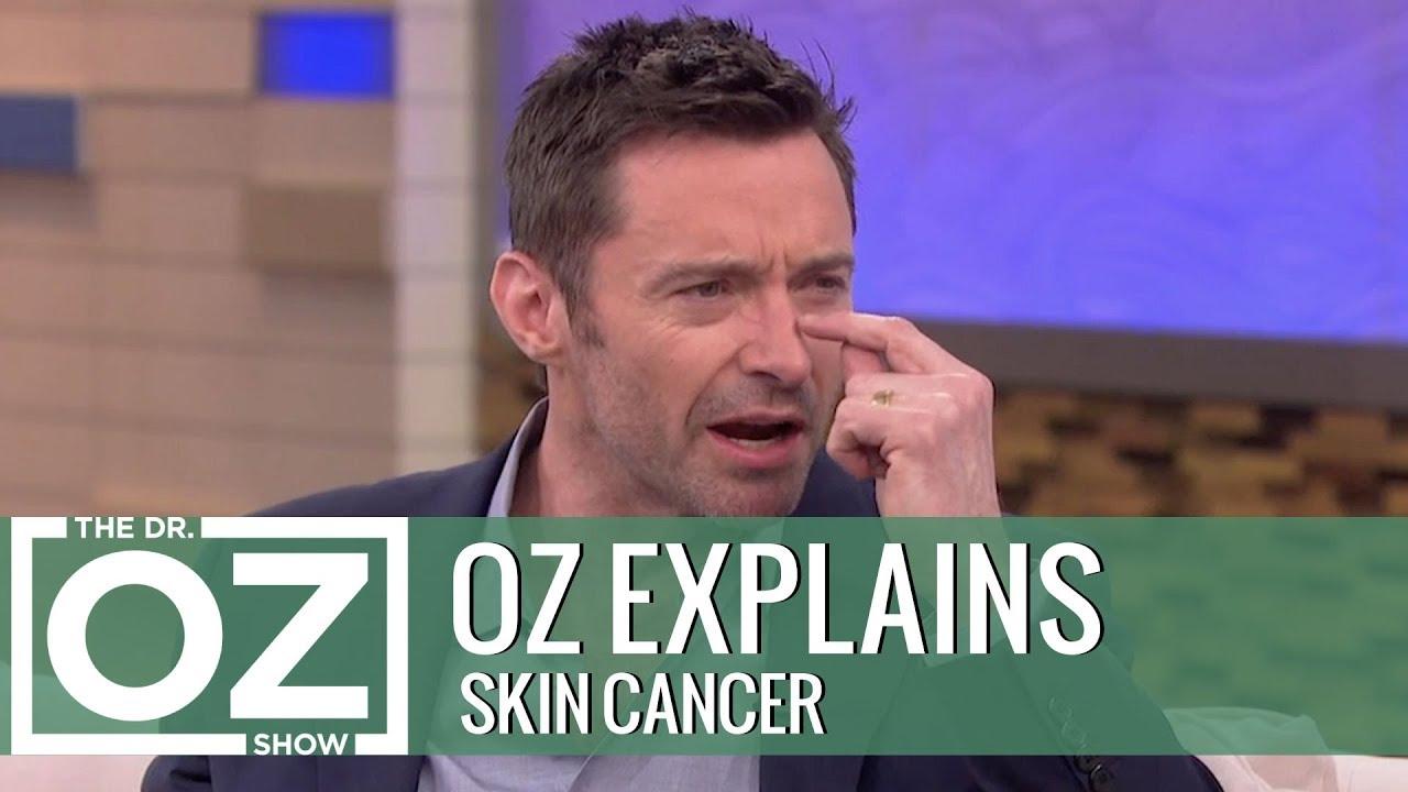 Dr. Oz Explains Skin Cancer