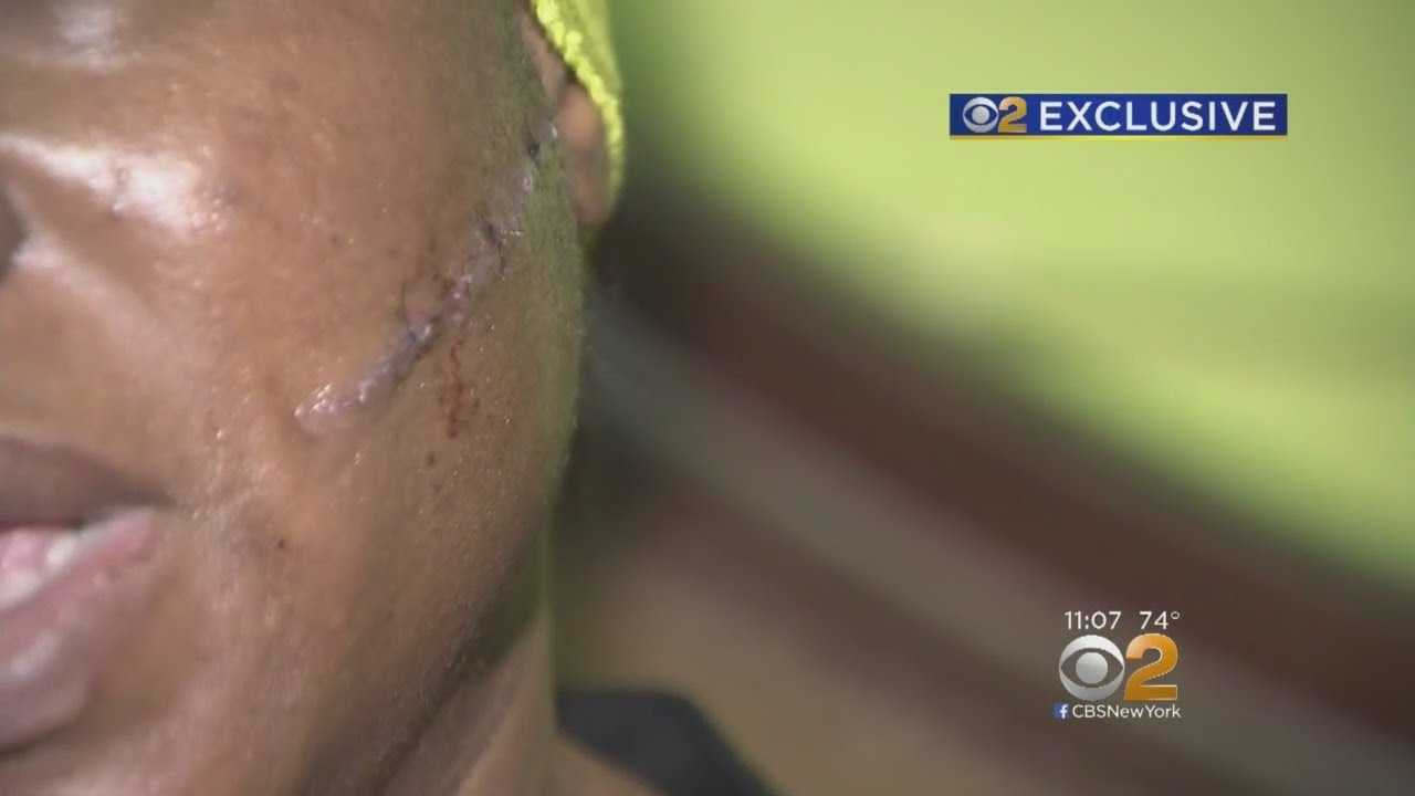 Woman Slashed By Stranger On Brooklyn Street