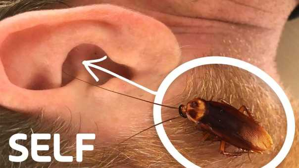 Can a Cockroach Crawl Into Your Ear? | How Common Is It? | SELF