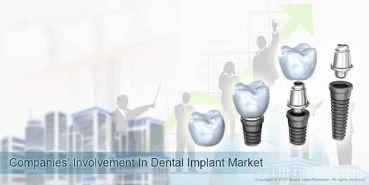 07_Companies-Involvement-In-Dental-Implant-Market_01 Factors Impacting Dental Implants Market Growth