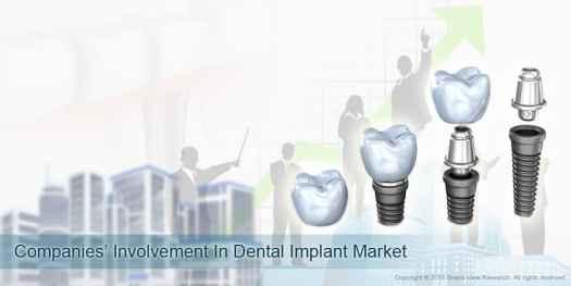 07_Companies-Involvement-In-Dental-Implant-Market_01 Factors Impacting Dental Implants Market Growth
