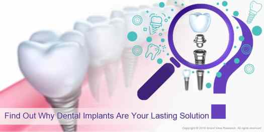 1 Find Out Why Dental Implants Are Your Lasting Solution - Factors Impacting Dental Implants Market Growth