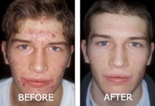 Revitol Acnezine Acne Treatment Does It Work My Review