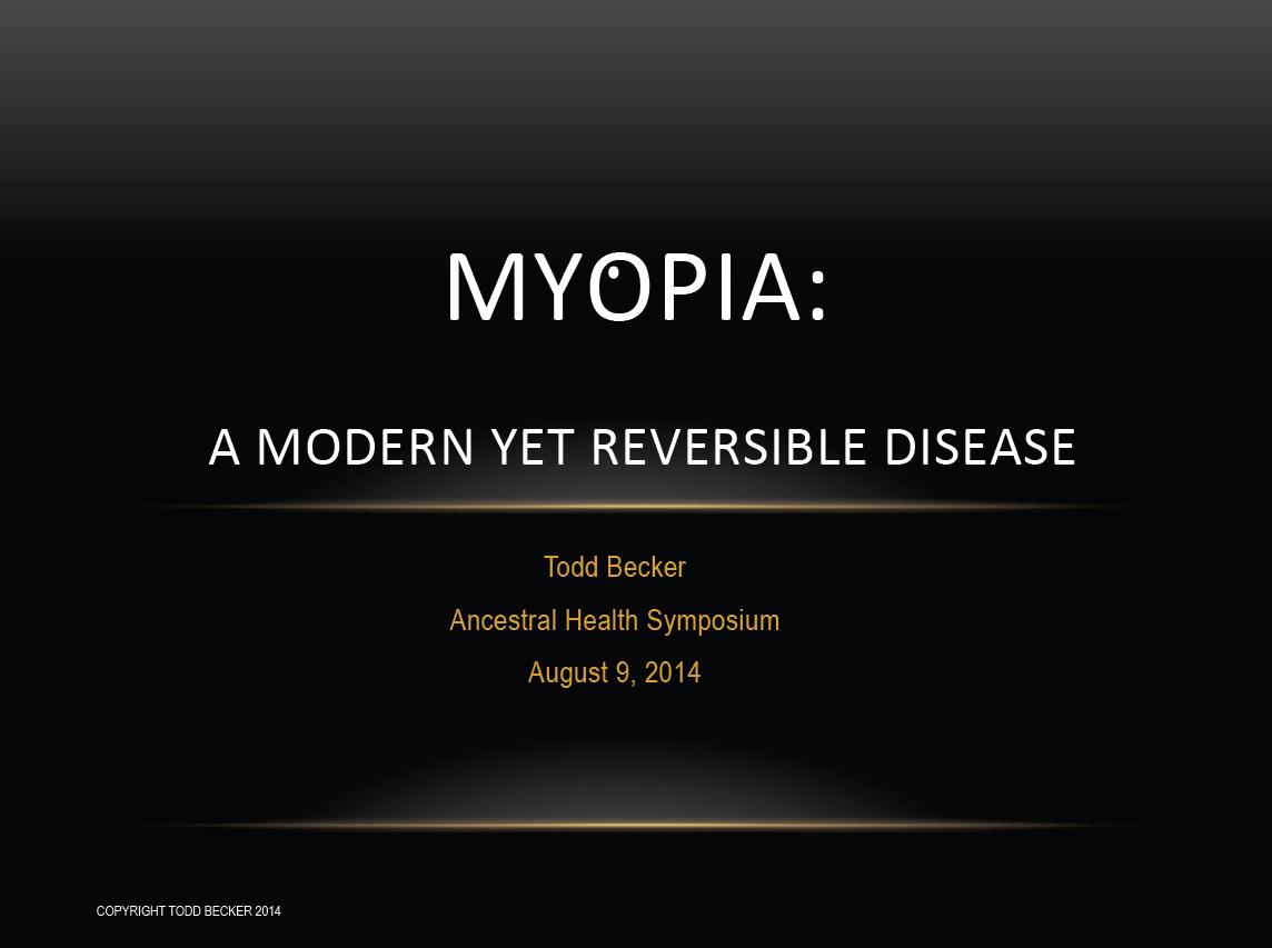 Poartă ochelari minus 30 dioptrii miopie mare