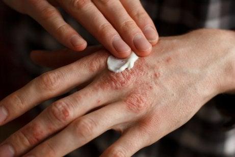 Strepen op de vingernagels door psoriasis