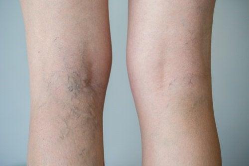 symptomen van een bloedprop in de benen
