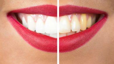 صورة تجنبي هذه الأطعمة التي تسبب اصفرار الأسنان