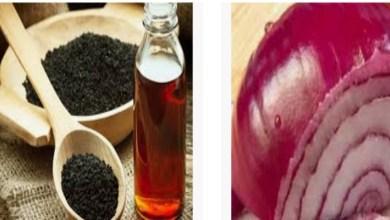 صورة البصل وحبة البركة لعلاج مشكل فراغات الشعر