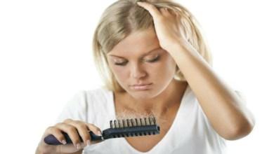 صورة تعرفي على أسباب تساقط الشعر في فصل الصيف؟