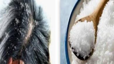 صورة وصفة ملح البحر السحرية لإزالة القشرة نهائيا من فروة الرأس