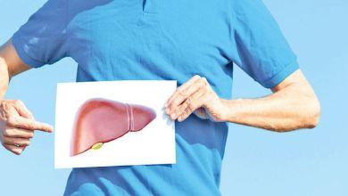 صورة الكبد الدهني.. مخاطره وطرق الوقاية منه