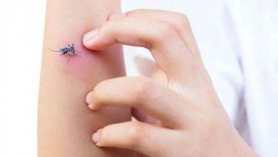 صورة سيدة تجري 60 عملية جراحية وتبتر أصابع رجليها بسبب لذعة حشرة