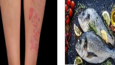 صورة دراسة: تناول السمك يقي من الأكزيما والربو
