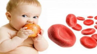 صورة أعراض وأسباب فقر الدم عند طفلك