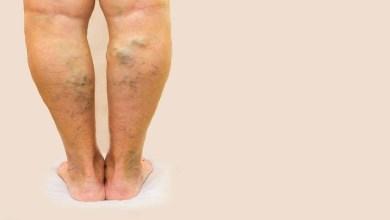 صورة 3 عادات يومية لعلاج الدوالي في الساقين