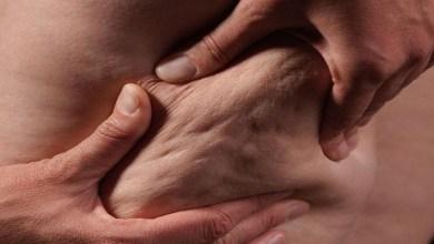 صورة 7 حلول طبيعية لمشكلة السيلوليت وشد الجلد