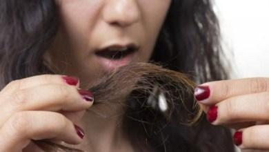 صورة كيف تعالجين تقصف الشعر بالوصفات الطبيعية؟
