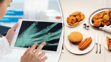 صورة 4 ممارسات خاطئة تزيد من خطر إصابتك بهشاشة العظام