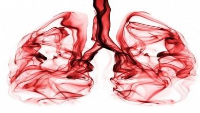 صورة السعال الدموي ينذر بإصابتك باضطرابات رئوية