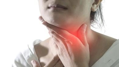 صورة ملف الأسبوع.. أسباب التهاب اللوزتين الأسباب وأعراضه وطرق العلاج