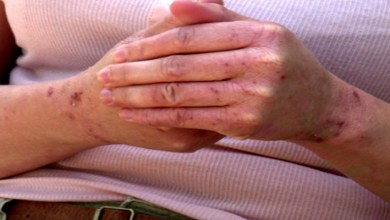 """صورة ما هي أكثر العلاجات شيوعا لمرض """"الإكزيما""""؟"""