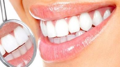 صورة وصفة فعالة لتبييض الأسنان في وقت قصير
