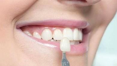 صورة نصائح للحفاظ على بياض أسنانك