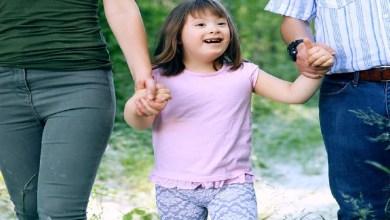 """صورة هل متلازمة داون """"المنغولية"""" مرض وراثي؟"""
