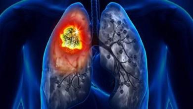 صورة منها تورم أطراف الأصابع وفقدان التوازن.. علامات الإصابة بسرطان الرئة