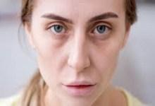 صورة أنواع التهاب الأعصاب وأعراضها