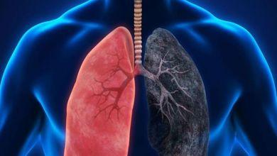 صورة 7 مكملات غذائية مهمة لصحة الرئة
