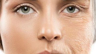 صورة في دقيقة واحدة.. 3 علاجات طبيعية سريعة لتجاعيد الوجه