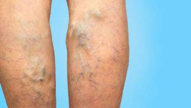 صورة تعرفي على أسباب إكزيما الدوالى بالساقين وأعراض الإصابة بها