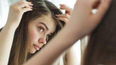 صورة علاج فراغات مقدمة الشعر في وقت قصير